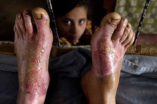 An Iraqi girl looks through the burned skin on her brother's feet during the Iraq War.
