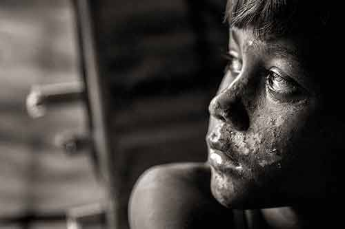 Rohingya boy Mohammadshofait Kurimulla looks out the door of the family's shelter, his face still covered in burn wounds from when their house was set on fire in Lambaghuna Moungdaw in Myanmar.